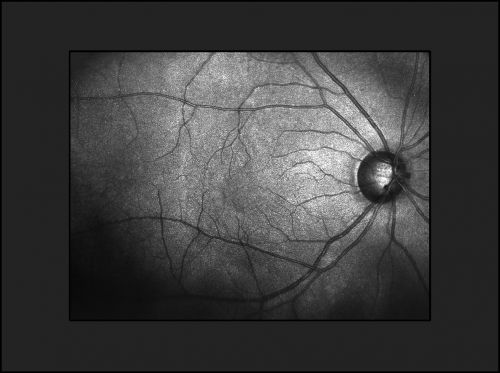 View of the macula in retina with vessels